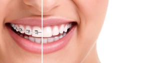 San-Diego-Invisalign-and-ClearCorrect